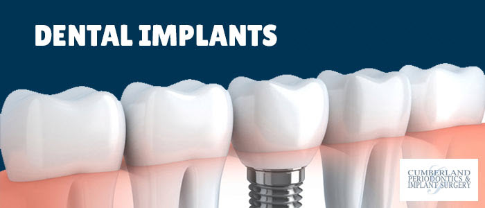 Dental Implants in Toronto