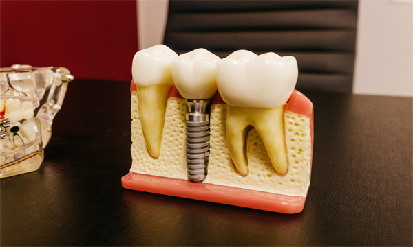 Are Dental Implants Right for Me