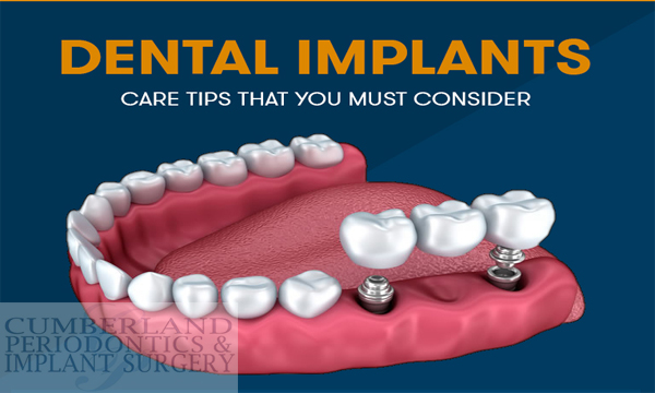Dental Implants Care Tips That You Must Considers